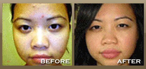 Skinpeccable   Acne Dermatologist   Los Angeles