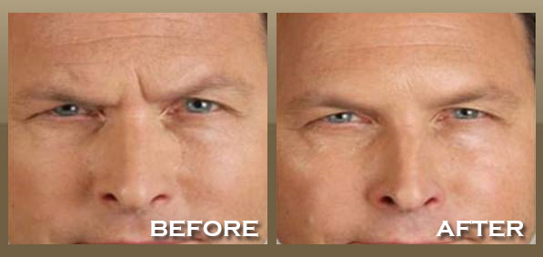 Skinpeccable Botox 174 Los Angeles