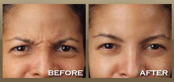 Skinnpeccable Botox 174 Los Angeles