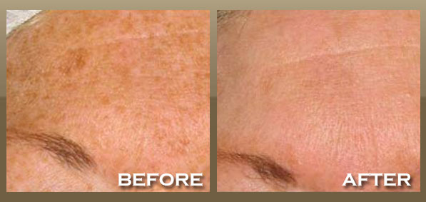 IPL Photofacial Brentwood, West Hollywood, LA |Skinpeccable