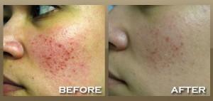 IPL Photofacial Treatment