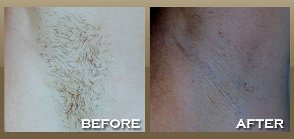 Laser Hair Removal Brentwood West Hollywood La Skineccable