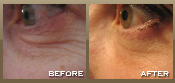 Skinnpeccable Fractional Skin Tightening Los Angeles