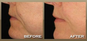 Fractional Skin Tightening