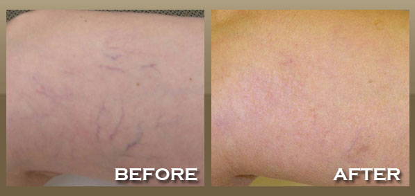Skinnpeccable Laser Vein Removal Los Angeles