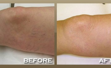 Laser Vein Removal Treatment