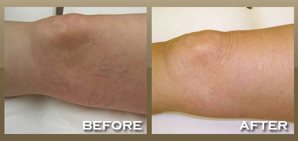 how to get rid of cut scars on legs