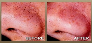 Microdermabrasion Treatment