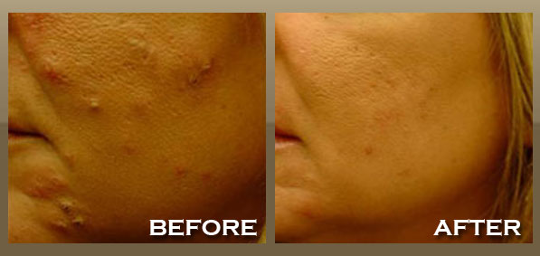 How Remove Pimples Spot Best Home Treatment For Acne And