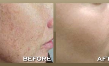 Treatmement For Red or Brown Spots
