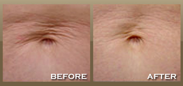 Will Loose Skin Tighten After Weight Loss