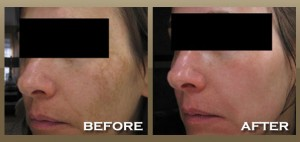 Melasma Before and After Photo