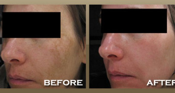 Melasma Treatment For Skin