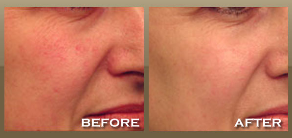 Dr. Darvish Can Reduce And Eliminate Brown Spots With A Series Of Intense  Pulsed Light (IPL) Treatments. The IPL Laser Directly Targets And Treats ...
