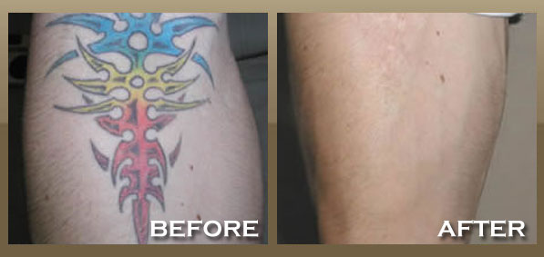 Laser tattoo removal skinpeccable for Skin works tattoo