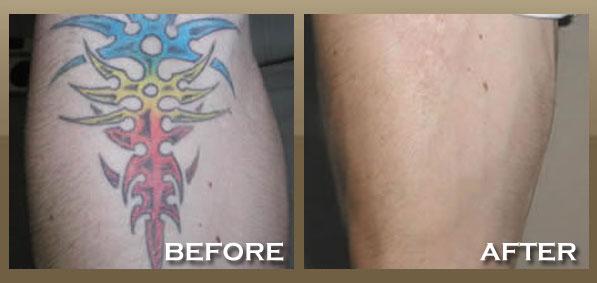 Laser Tattoo Removal - Skinpeccable